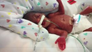 Born four months early, this girl beats the odds.