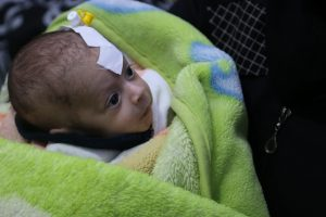 Photo of a newborn Syrian baby wrapped in a blanket, with a bandage on head.